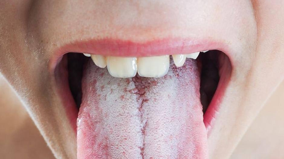 Belegte zunge grau Zungenbelag: Das