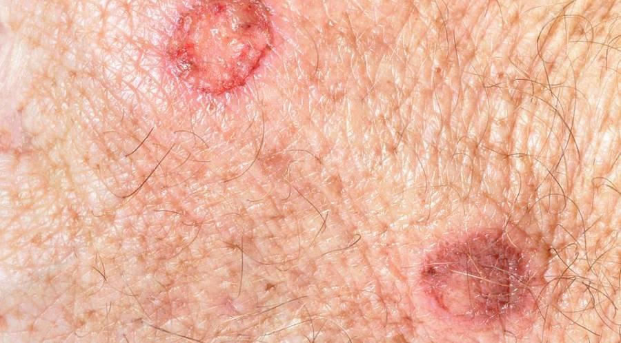 Hautfetzen am hals