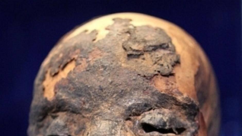 Mannheim Mumien
