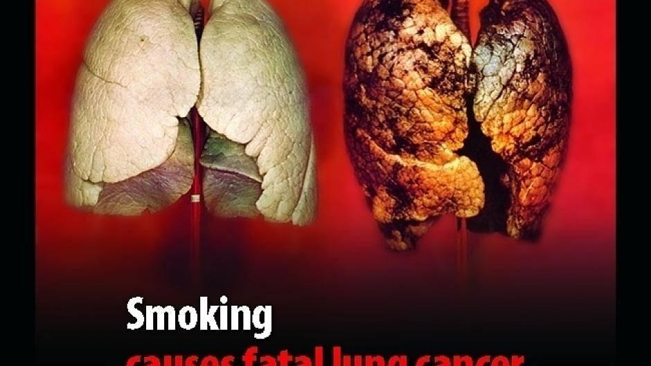Mittel gegen rauchen test