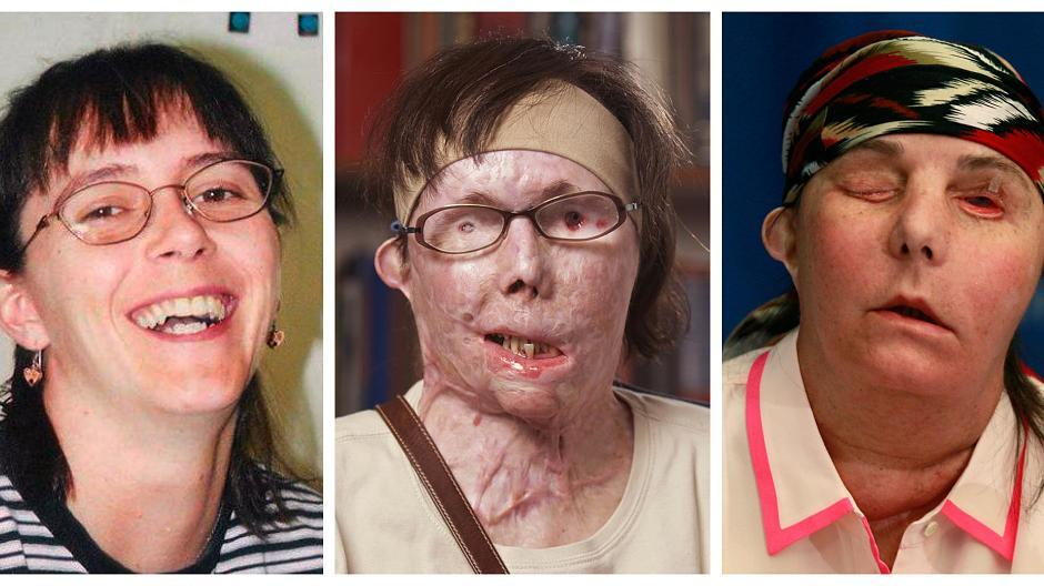 Gesichtstransplantation