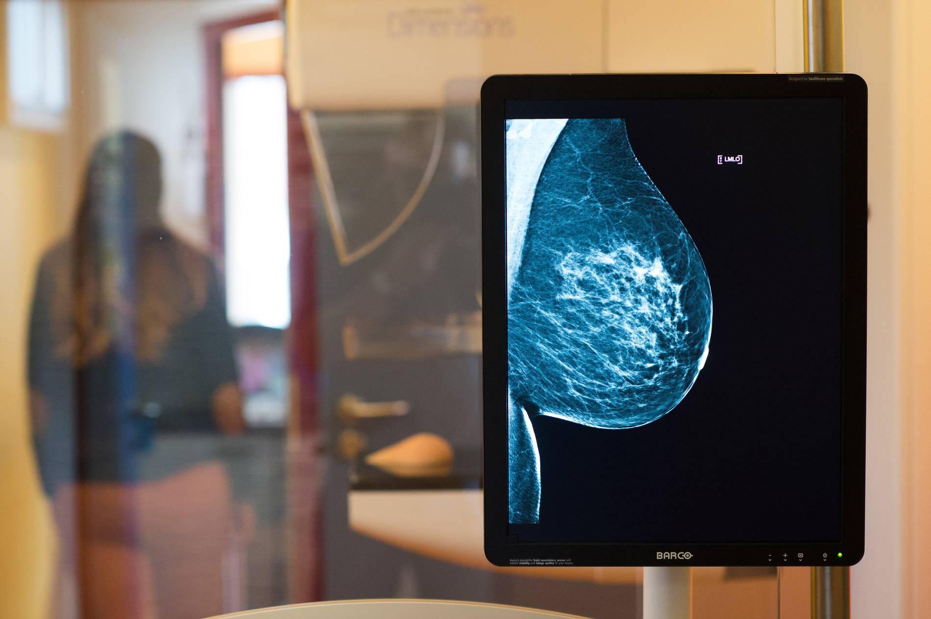 brustkrebs heidelberg