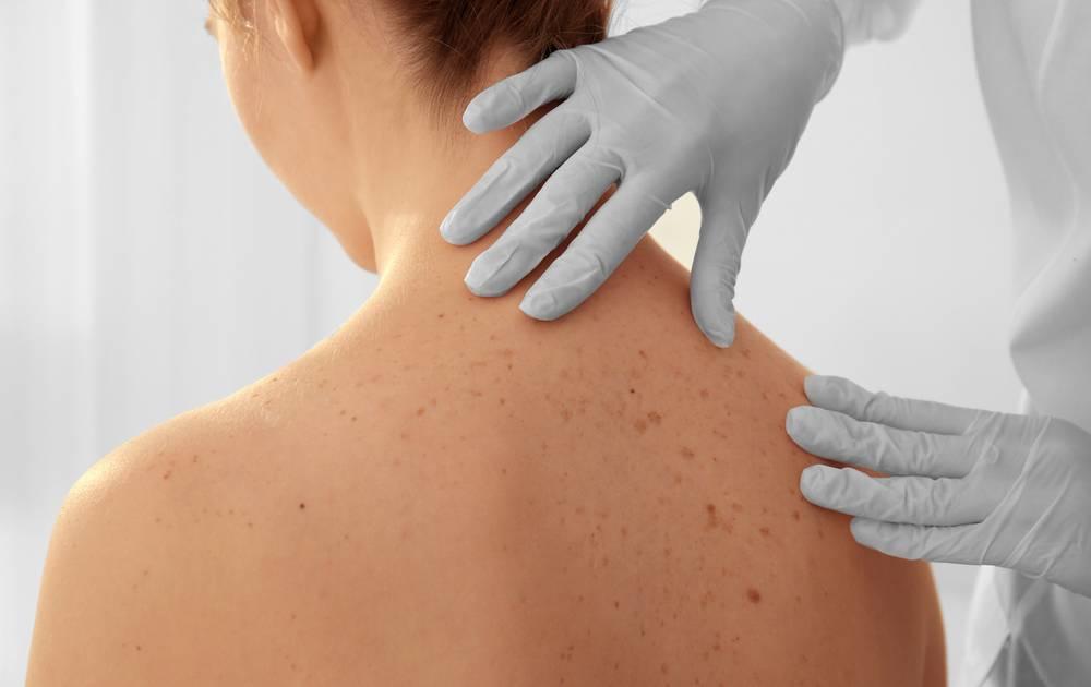 Pickel am Rücken - Tipps gegen Hautunreinheiten