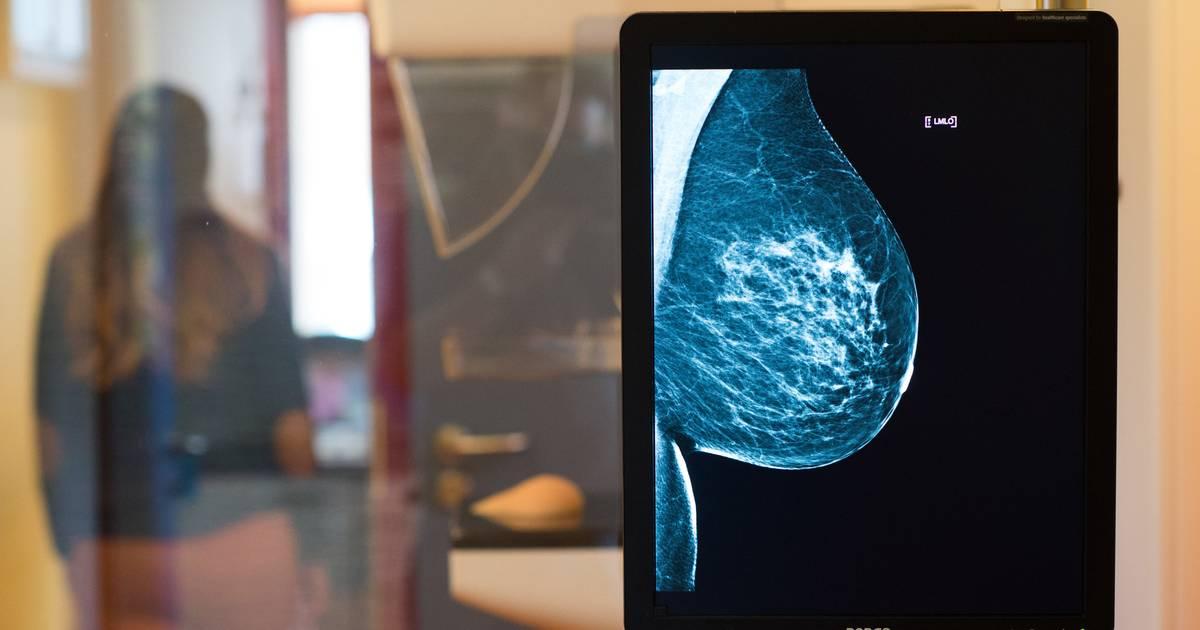 Brustkrebs: Das müssen Sie über die Vorsorge wissen