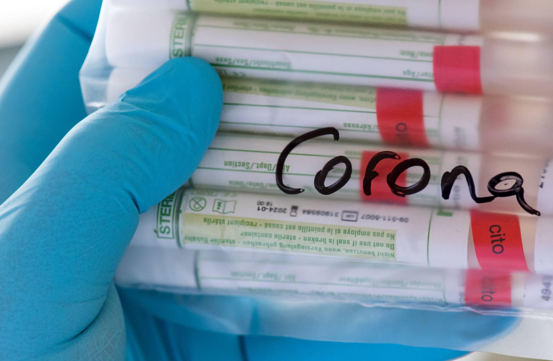 Flughafen prüft Details wegen Corona-Tests