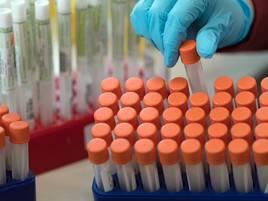 Zahlen im Rhein-Kreis Neuss: 44 Menschen nachweislich mit dem Coronavirus infiziert